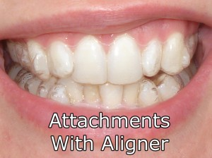 Attachments With Aligner On