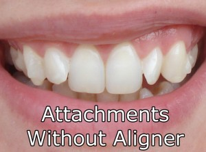Attachments Without Aligner On