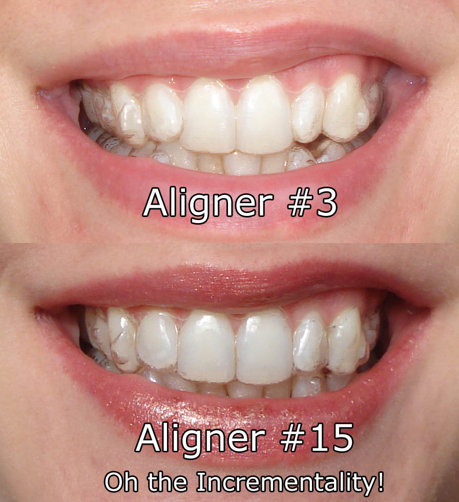 Living with Invisalign: Oh the Discomfort! | S&S Blog